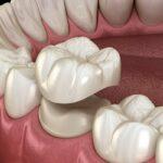 gyökérkezelés, korona, Budapest Dentcare, blog, fogakról szájbarágósan blog